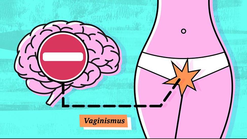 vaginism